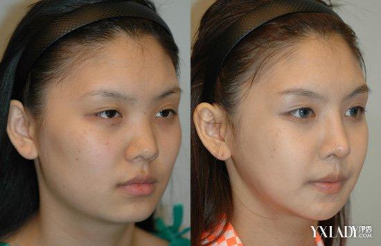 【图】鼻子抽脂的过程介绍 韩式鼻子抽脂的效果怎么样