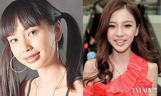 最丑女演员赵丽颖_【图】杨颖赵丽颖郑爽整容前后照片 这些女星以前曾是