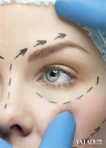【图】正确认识双眼皮整形