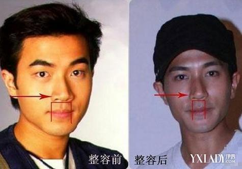 刘恺威整容前后照片 变化巨大获称假面小生