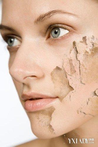 【图】皮肤角质增生怎么办呢 果酸换肤帮你解