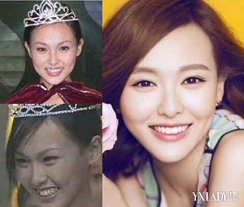 【图】唐嫣小s 揭女星牙齿整容前后照片对比
