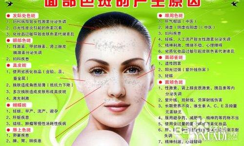 斑的位置固)�_【图】女人长斑的位置图解 揭秘容易长斑的五个时期