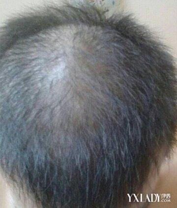 【图】头顶头发稀少怎么办? 3步帮你重获浓密
