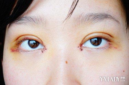 割双眼皮开眼角恢复图 手术全过程详细记录
