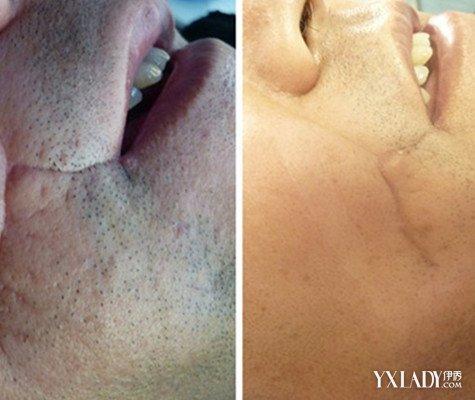 【图】推荐疤痕凹陷修复 4种治疗方法还你健康皮肤