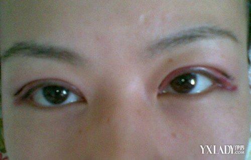 全切双眼皮恢复过程图解 手术三部曲让你拥有漂亮明眸
