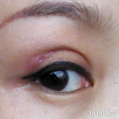 点压双眼皮的5个优点介绍 术前术后值得注意的几个事项