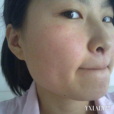【图】脸过敏了能自愈吗? 三个预防方法的推荐