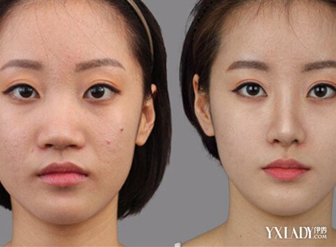 磨骨手术对比照片 术后脸形变化大