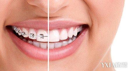 采取的步骤,正畸治疗通过矫治力对牙齿进行重新排列