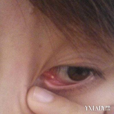 眼睛里面长了个脓包,是皮肤软组织感染化脓后,皮肤软组织感染,在表皮