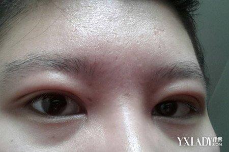 眼睛哭肿了怎么办 以下7个简单方法让你迅速消肿