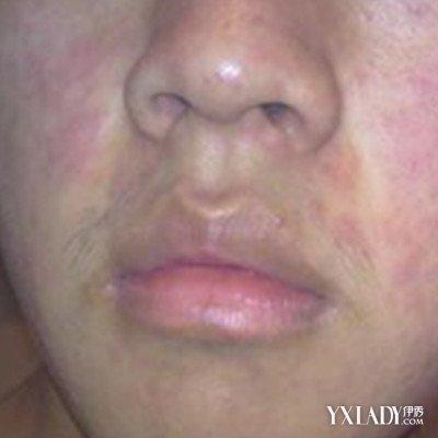 软化疤痕组织,促进皮肤愈合,使皮肤恢复弹性,光滑,最大程度的修复疤痕