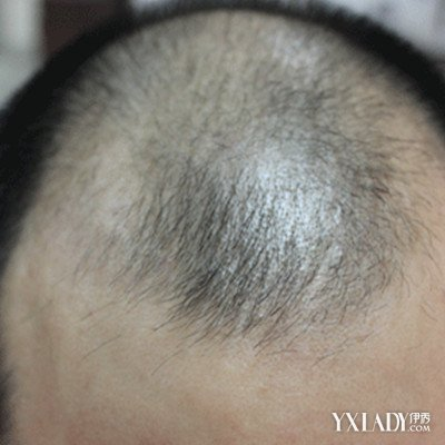 【图】脂溢性v生姜生姜搽8个防治方法很糟卤豆腐图片