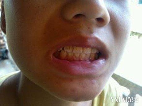 宝宝牙龈发白_宝宝牙齿上有黑色牙垢-小孩牙齿上有黑色牙垢|牙齿上的黑色牙垢 ...