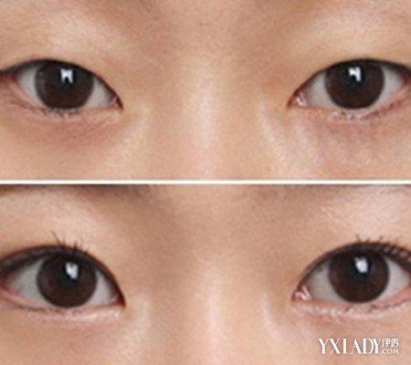 双眼皮恢复过程图片 揭秘埋线双眼皮原理
