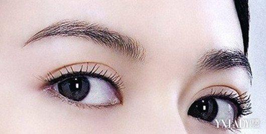 【图】简欧式双眼皮图片集锦