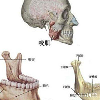 【图】下颌角磨削术的特点是什么