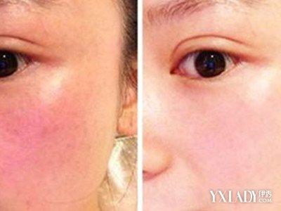 脸皮肤的结构图