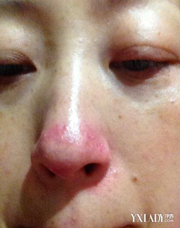 脸上长痘能吃海鲜吗_图脸上长痘痘是怎么回事?3个方法助你快速祛痘