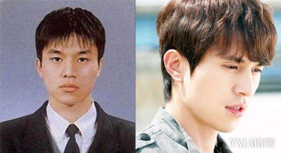 金明洙整容照片曝光 韩国男星出道前后对比照