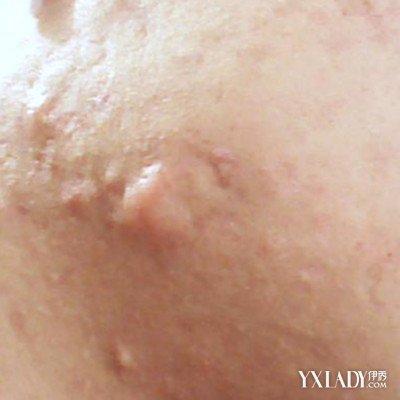 螨虫痘痘的面部症状是什么表现 5个面部螨虫叮咬的症状图片