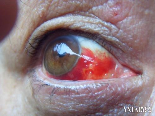 眼部结膜结构示意图