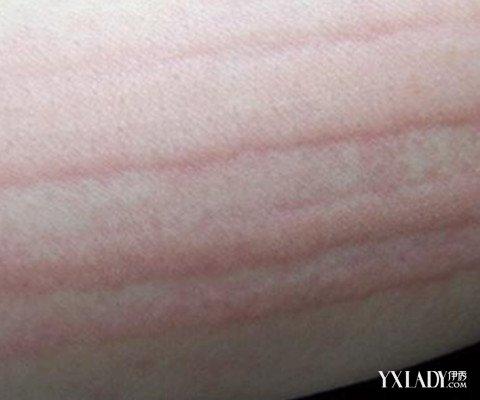 【图】皮肤划痕症怎么治 推荐四大民间偏方(2
