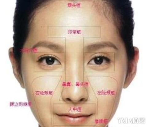 脸上长痘痘位置图解 让痘痘来告诉你身体哪里生病了