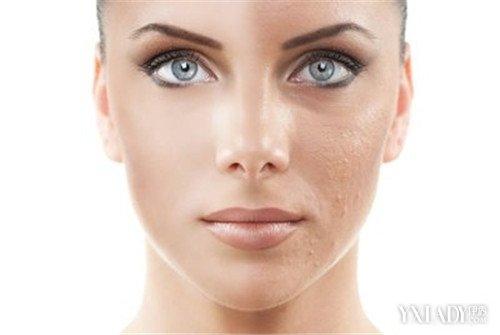 【图】毛孔脸上女生大毛多八大改善毛告白女生的表情包图片