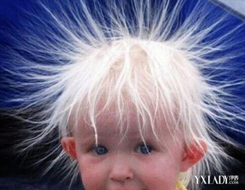 【图】头发起静电怎么处理 九个小妙招教你远离静电图片