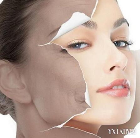【图】干性皮肤怎么去斑呢? 祛斑生活小窍门推