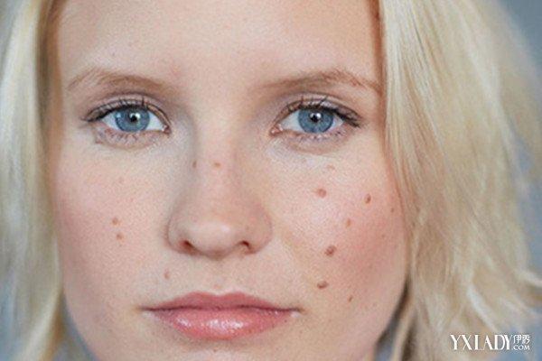 【圖】臉上有很多痘痘還癢怎么回事呢? 簡單三