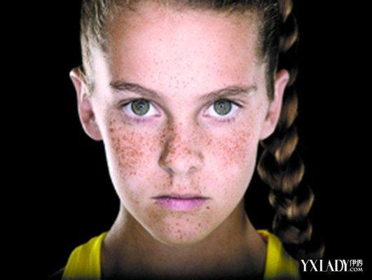 【图】女人脸上有雀斑怎么治呢 教你去雀斑的简单方法