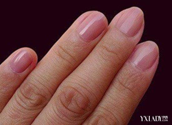 总的来说,手指甲上出现白点,还是要注意一下的.因为手指甲上的白