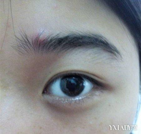 【图】眉毛长痘是怎么回事呢? 为你找出原因和