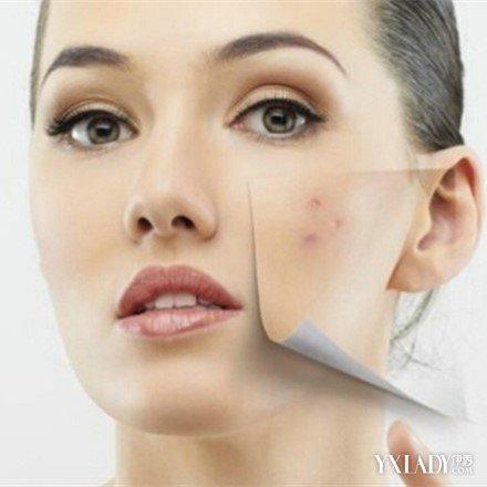 【图】女孩子脸上长女生长痘几大原因起不痘痘来图片