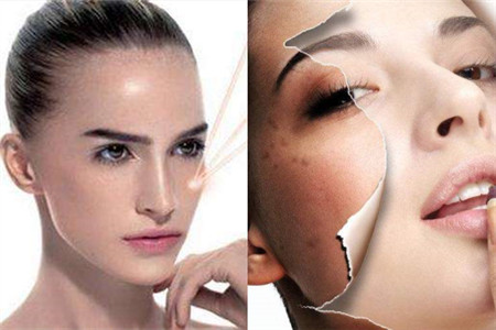 【图】激光祛斑有副作用吗 手术后如何护肤
