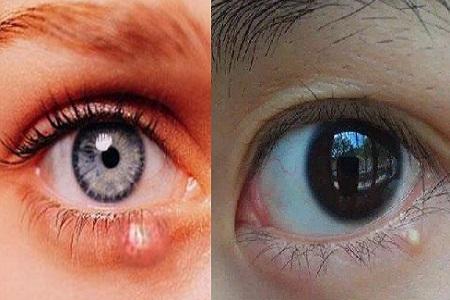 眼球上长了个白色疙瘩_【图】眼睛周围长小疙瘩 原来是这里出了问题