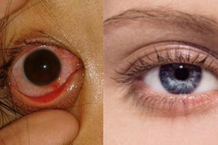 眼球充血图片_【图】眼睛发炎充血 这是身体给你的警告