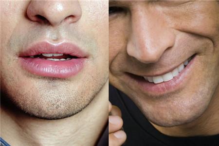 男生嘴巴周围有痣代表什么 告诉你到底有哪些含义图片