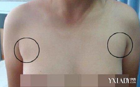 【图】女人腋下长副乳