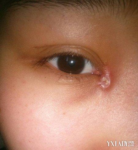 【圖】開眼角疤痕增生圖片展示圖片