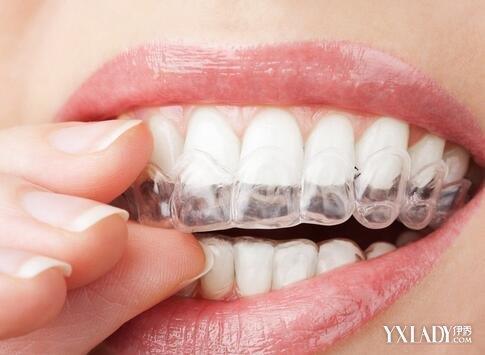 beautiful отбеливание зубов