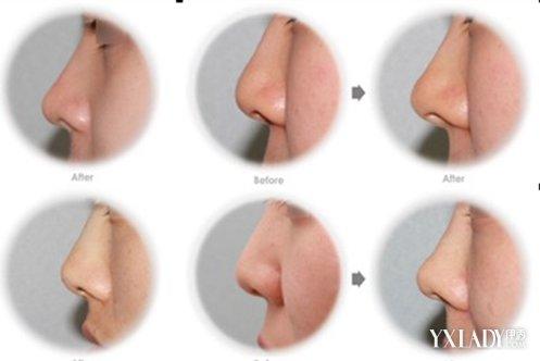 【图】鼻子塌鼻头大怎么办呢 小编列举了三个