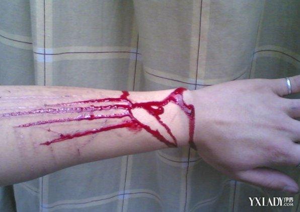 手臂流血的照片大盘点 4大步骤教你快速止血