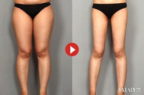 如何纠正o型腿图解 简单几步让你快速矫正腿型