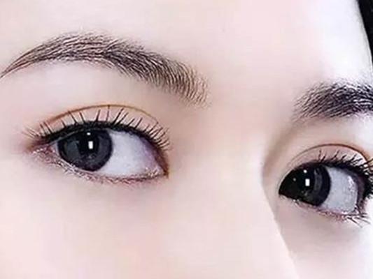 【图】多余高中去除步骤教你6大眼皮快速脂肪最後暑假的图片
