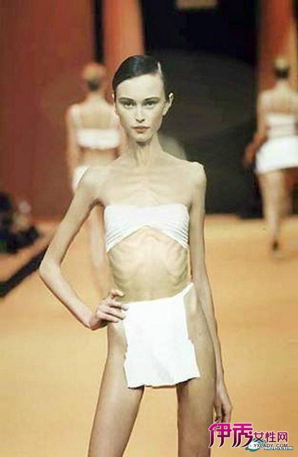 惊!世界上最令人恐怖的最瘦女模特